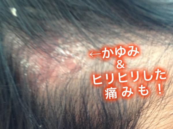 頭皮のかゆみ・ヒリヒリした痛み