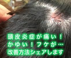 頭皮炎症が痛い!かゆい!フケが…私が成功した改善方法をシェアします。